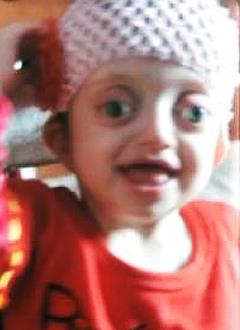 Настя Квинт, полтора года, деформация черепа, синдром Крузона, требуется подготовка к операции. 140000 руб.