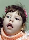Милена Белозерова, симптоматическая эпилепсия, детский церебральный паралич, требуется лечение, 199770 руб.