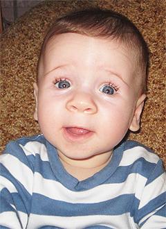 Тема Салазкин, 5 месяцев, врожденная левосторонняя косолапость, требуется лечение по методу Понсети. 123656 руб.