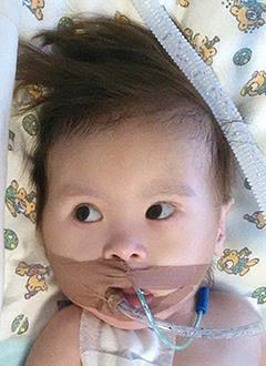 Далер Шукуруллоев, 2 года, врожденный порок сердца, спасет операция. 267000 руб.
