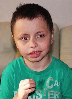 Дима Гомзяков, 10 лет, органическое поражение центральной нервной системы, детский церебральный паралич, требуется лечение. 199620 руб.