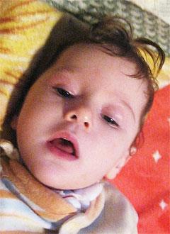 Рита Крицкая, 2 года, поражение центральной нервной системы, требуется обследование и лечение. 39602 руб.