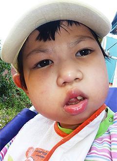 Вика Ким, 9 лет, симптоматическая эпилепсия, детский церебральный паралич, требуется лечение. 199620 руб.