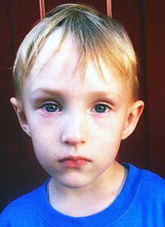 Илья Корсуков, 3 года, амниотические перетяжки правых кисти и стопы, требуются многоэтапные операции. 338129 руб.
