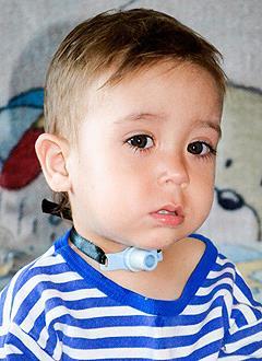 Артем Николаев, 2 года, папилломатоз гортани, стеноз гортани, требуется многоэтапное хирургическое лечение в Центре голоса Есон (Сеул, Корея). 2883000 руб.