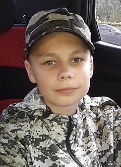 Женя Чинаров, 14 лет, ретромикрогнатия (недоразвитие челюсти), резцовая дизокклюзия (отсутствие прикуса), деформация зубного ряда, требуется ортодонтическое лечение. 320000 руб.