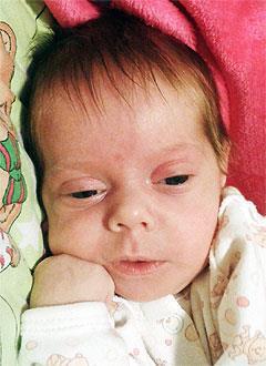 Мирослава Павлова, 4 месяца, атрезия (недоразвитие) пищевода, спасет операция. 129160 руб.