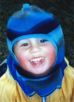 Мирон Антипов, 10 лет, дистальная окклюзия (нарушение прикуса), задержка прорезывания зубов, сужение зубных рядов, требуется хирургическое и ортодонтическое лечение. 320000 руб.