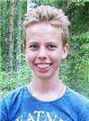 Дима Воробьев, 15 лет, глубокая дизокклюзия (отсутствие смыкания зубов), деформация челюстей, требуется ортодонтическая подготовка к операции. 78619 руб.