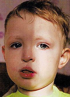 Саша Красовский, 5 лет, расщелина альвеолярного отростка, ринолалия (гнусавость), требуется лечение в стационаре. 166000 руб.