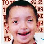 Зиннур Маузитов, дефект развития челюстей, неправильный прикус, требуется ортодонтическое лечение, 100000 руб.