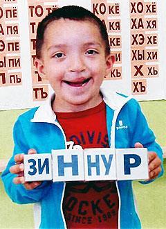Зиннур Маузитов, 6 лет, дефект развития челюстей, неправильный прикус, требуется ортодонтическое лечение. 100000 руб.