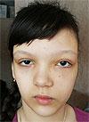 Надя Булаева, 10 лет, фиброзно-кистозная дисплазия челюстно-лицевой области, спасет операция. 307000 руб.