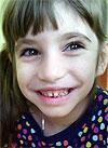 Аня Столярова, 5 лет, врожденный гиперинсулинизм, требуется лекарство. 241087 руб.