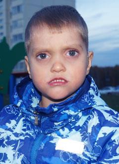Егор Шуленков, 4 года, тугоухость 3–4-й степени, недоразвитие речи, требуется лечение. 212660 руб.