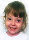 Илона Валуева, 6 лет, остеопетроз – редкое генетическое заболевание, требуется плановое обследование в медицинском центре «Хадасса Медикал Сколково» (Москва). 44417 руб.