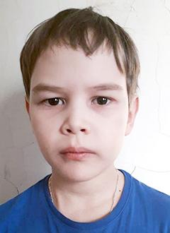 Артем Дягилев, 10 лет, гидроцефалия – водянка головного мозга, состояние после операции, требуется программируемая шунтирующая система. 175553 руб.